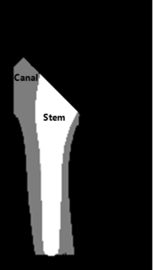 Automated Femoral Stem Canal Fill Ratio Evaluation for Bipolar Hip Arthroplasty in 2D X-Ray Image