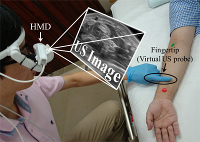 A New Ultrasonographic Image Displaying System to Support Vein Detection