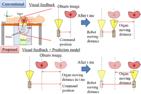 Servoing Performance Enhancement via a Respiratory Organ Motion Prediction Model for a Non-Invasive Ultrasound Theragnostic System
