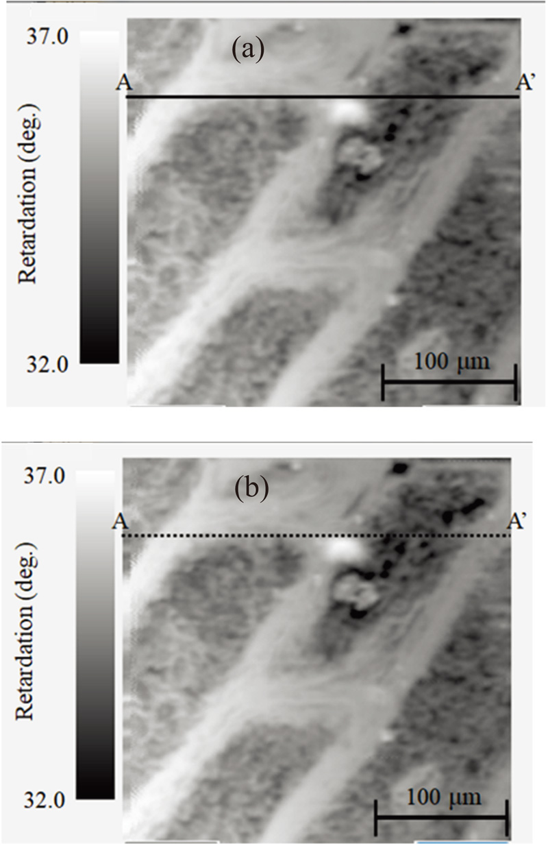Development of Birefringence Confocal Laser Scanning Microscope and its Application to Sample Measurements